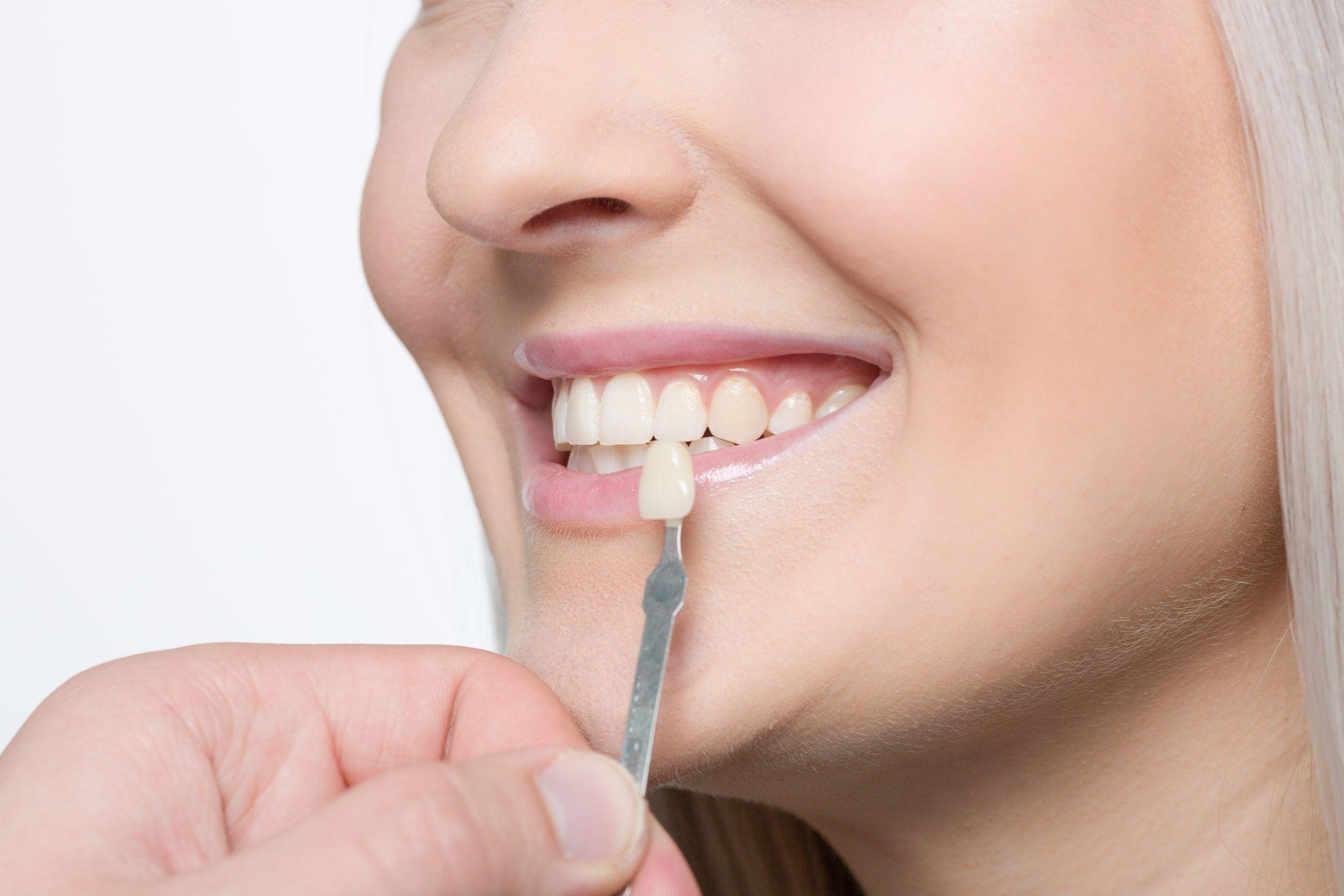 clínica dental en Salamanca