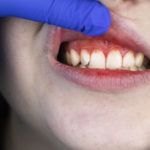 gingivitis en Salamanca