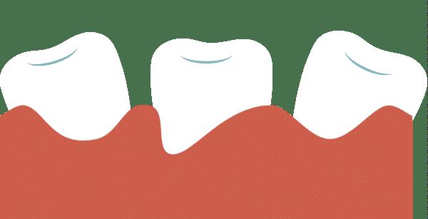 movilidad de los dientes
